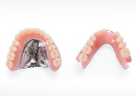 レジン床義歯より、快適な噛み心地「金属床義歯」