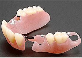 金属を使用しない部分入れ歯「ノンクラスプデンチャー」